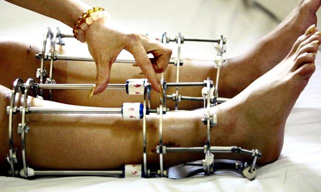 Phẫu thuật kéo dài chân buộc bạn phải đeo khung cố định trong thời gian dài