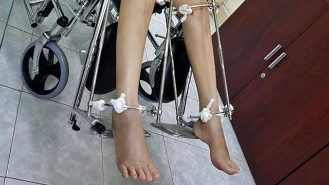 Phẫu thuật kéo dài chân tiềm ẩn nhiều rủi ro